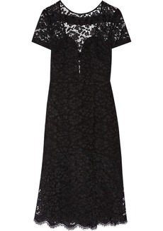 Burberry Prorsum Open-back lace dress